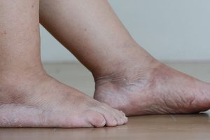 Best Extra Stretchy Socks for Swollen Feet