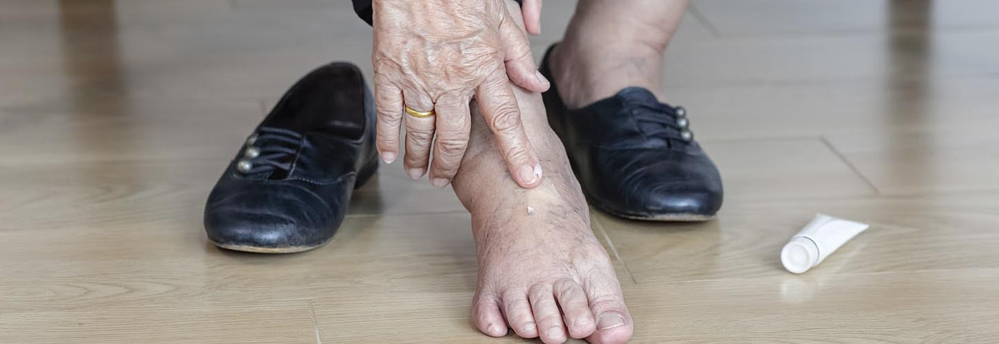 Old Ladies with Swollen Feet